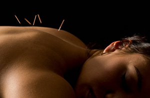 Acupuncture for Pain Relief Verwood
