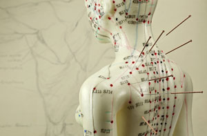 Acupuncture Near Me Bracknell