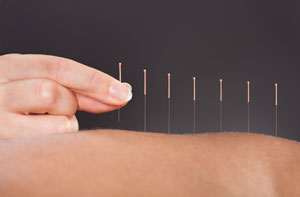 Acupuncture Altrincham Greater Manchester