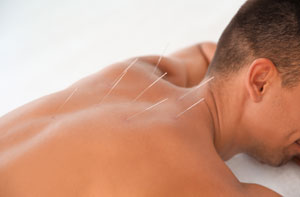 Acupuncture Rotherham