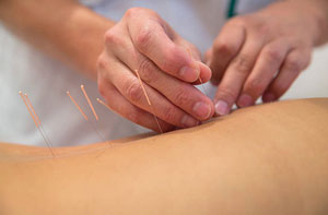 Acupuncture Horndean