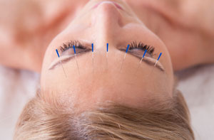 Acupuncturists in Crowthorne (01344)