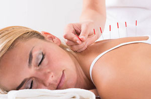 Acupuncturists Evesham UK