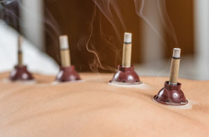 Moxibustion Warrington (01925)